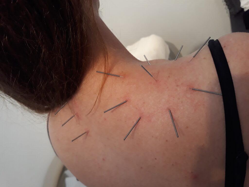 En kvinde der sidder med akupunkturnåle i sin ryg og bliver behandlet med AcuNova