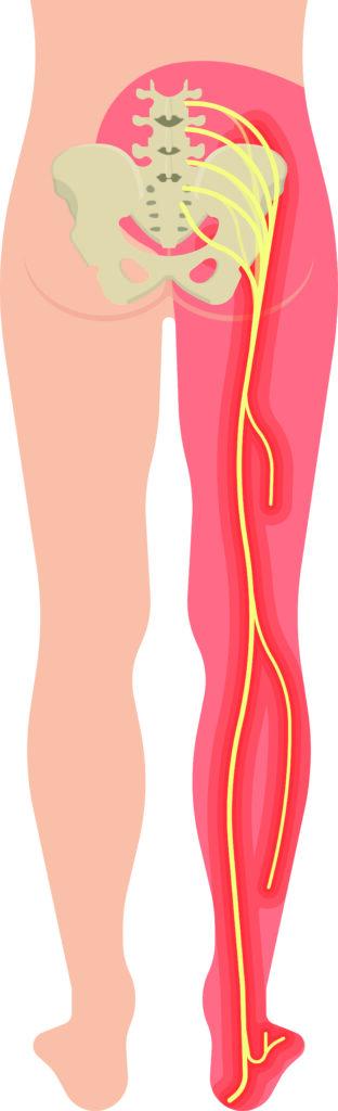 En tegning af ischais-nerve, der indikerer smerte