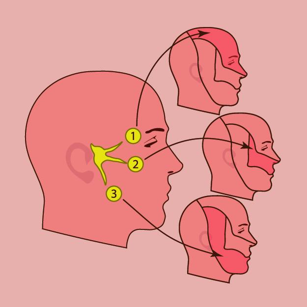 Et billede af et tegnet hoved med 3 forskellige punkter hvor det gær ondt - Trigeminus smerter