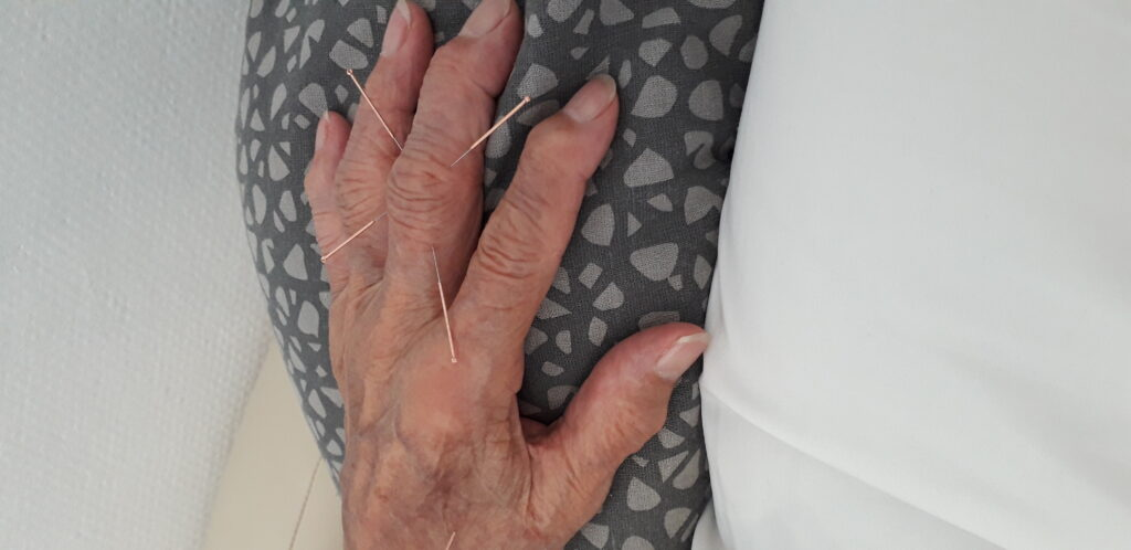 En venstre hånd tæt på af en gammel kvinde med akupunktur nåle i fingrene - Slidgigt - artrose